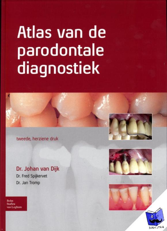 Dijk, Johan van, Spijkervet, Fred, Tromp, Jan - Atlas van de parodontale diagnostiek